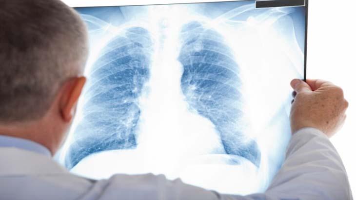 флюорография лёгких