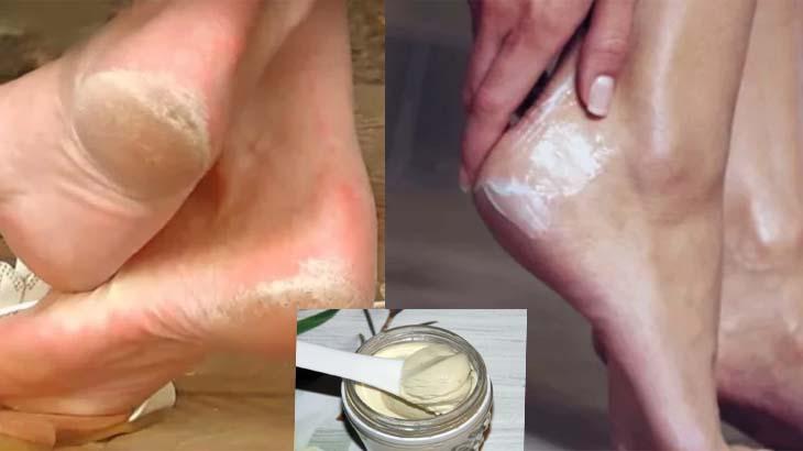 Лечение трещин на пятках яблочным кремом