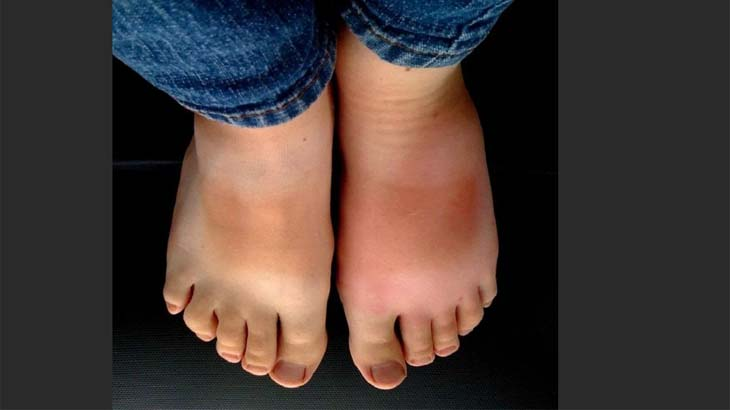 Отекшие ступни на ногах