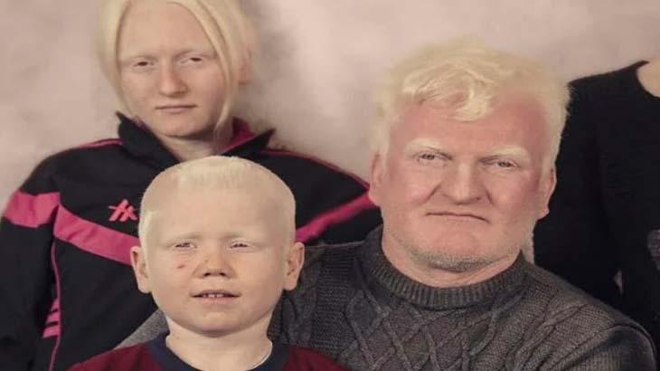 Глазно-кожный альбинизм