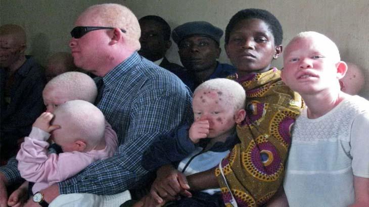 Африканские альбиносы