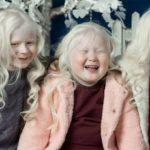 Кто такие альбиносы — симптомы и причины возникновения альбинизма
